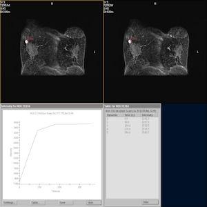 乳腺腫瘍の画像診断