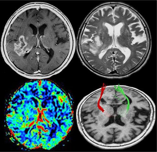 神経膠芽腫の症例