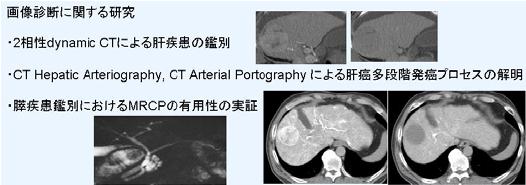 画像診断に関する研究