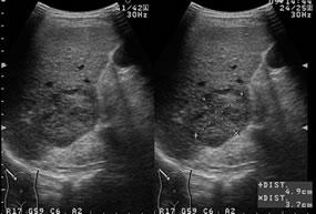 図4肝腫瘍