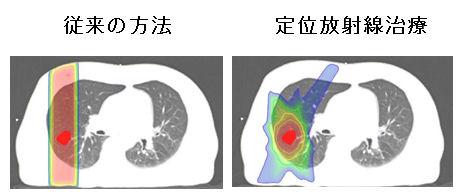 体幹部定位放射線治療