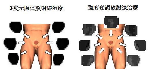強度変調放射線治療