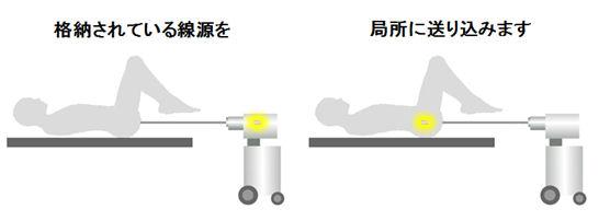 子宮頸癌の小線源療法(腔内照射)