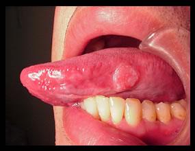 治療前(舌癌)